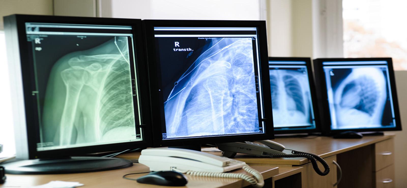 Accès au centre de radiologie de grande qualité